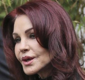 Priscilla Presley Before After Many Facelift Photos