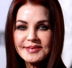 Priscilla Presley Botched Face Lift